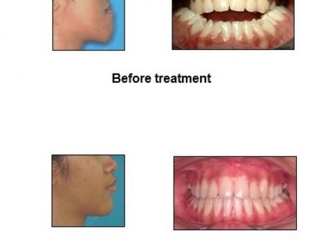 Kulliyyah Dentistry Offers Comprehensive Orthognatic Treatment in IIUM